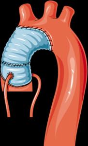 Anévrisme aorte réparation