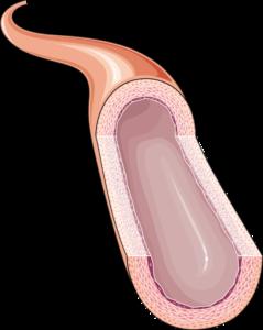 Artère coupe vide