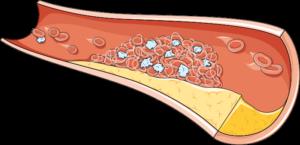 Artère embolie
