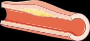 Artère remo positif