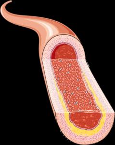Artère simple ouverte