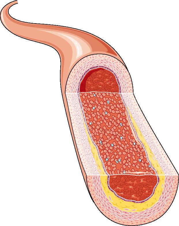 artère