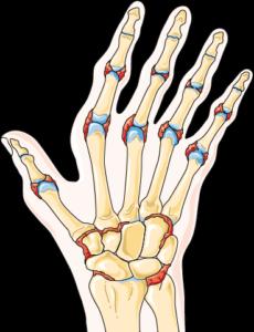 Arthrite main