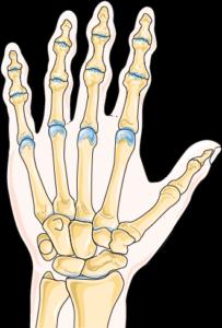 arthrose main