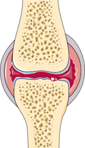 Articulation arthrite