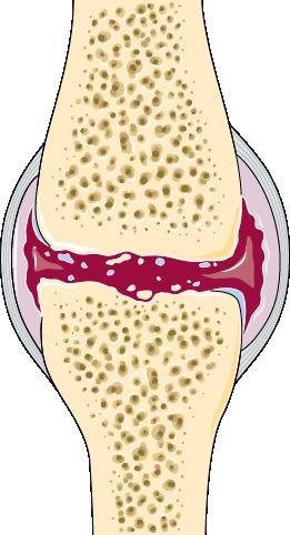 articulation arthrose