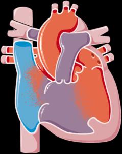 Malformation cardiaque congénitale