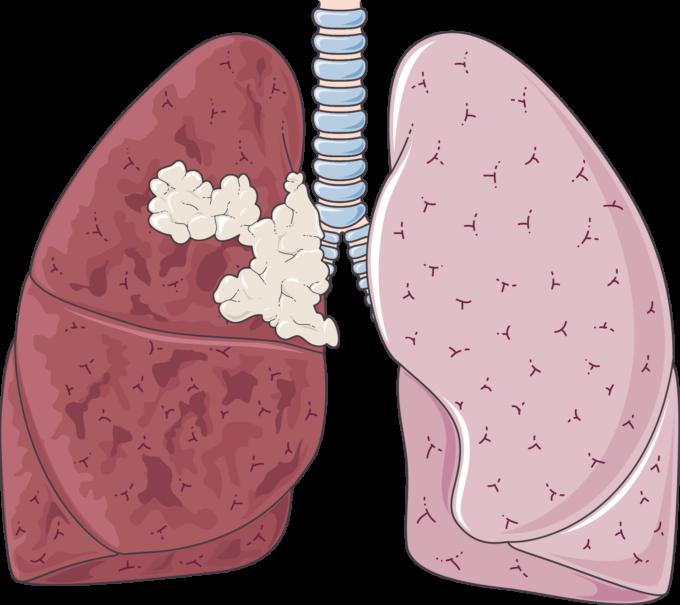 Lung cancer - Servier Medical Art - 3000 free medical images