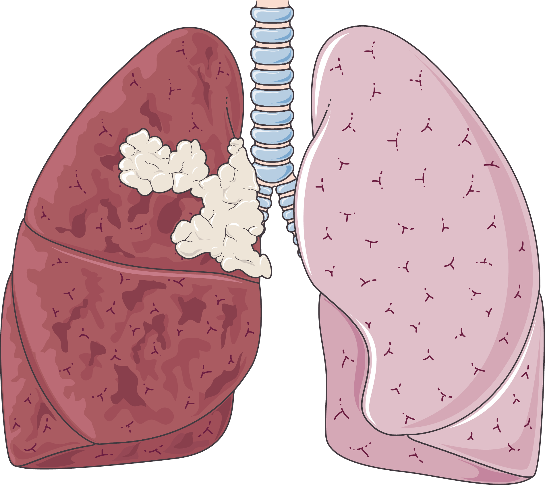 Lung cancer - Servier Medical Art - 3000 free medical images