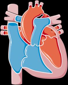 Coarctation de l'aorte
