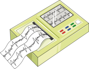 ECG enregistreur