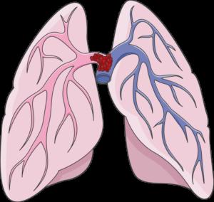 embolie Embolie pulmonaire