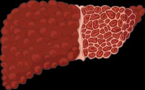 foie cirrhotique