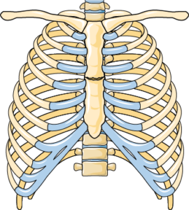 Fracture sternum