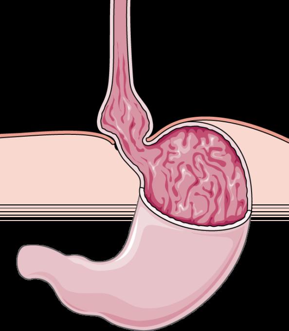 Hiatal hernia - Servier Medical Art - 3000 free medical images
