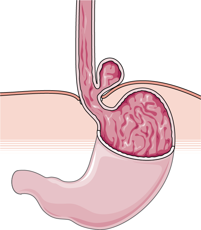 hernie paraoesophagiale