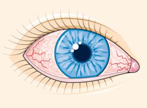 oeil conjonctivite
