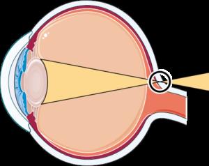 oeil hypermetrope
