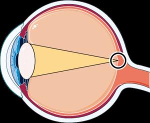 oeil normal