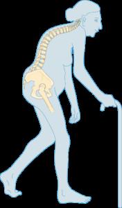 Ostéoporose sévère