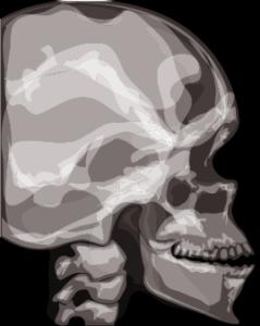 Radiographie crâne