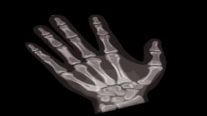 Radiographie main