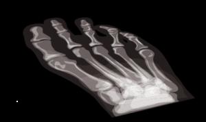 Radiographie pied
