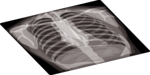 Radiographie thorax