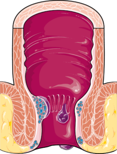 hémorrhoides