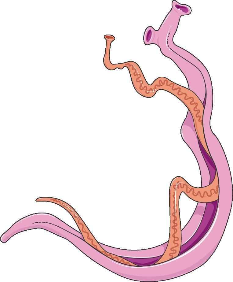 mansoni schistosomiasis)