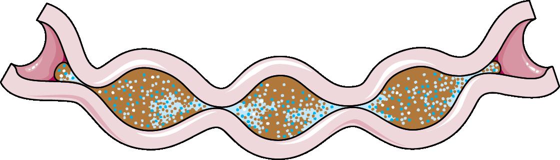 Intestine Segmentation Servier Medical Art 3000 Free Medical Images