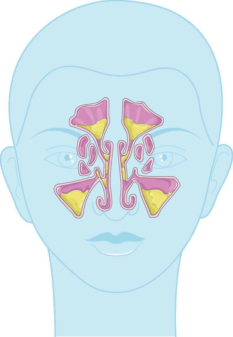 sinusite
