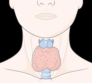 Thyroïde hyper