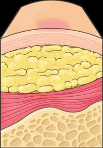 Ulcère