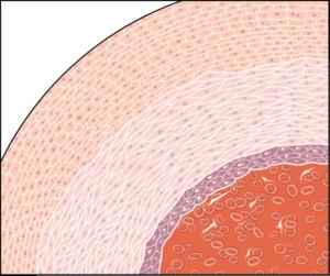 Zoom paroi artere