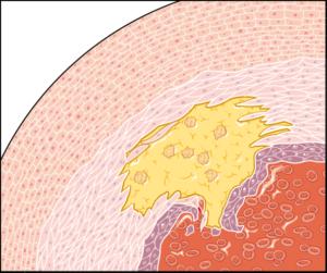 Zoom paroi artere2