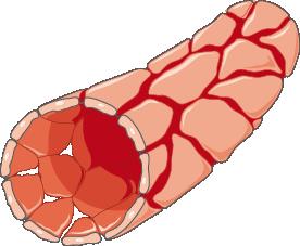 apoptose accélérée