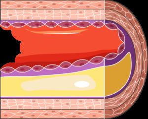 athérosclérose