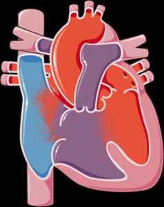 Malformation cardiaque congénitale atrio
