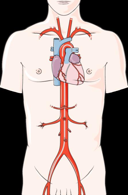 Cardiac Catheterization Servier Medical Art 3000 Free Medical Images