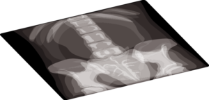 Radiographie bassin