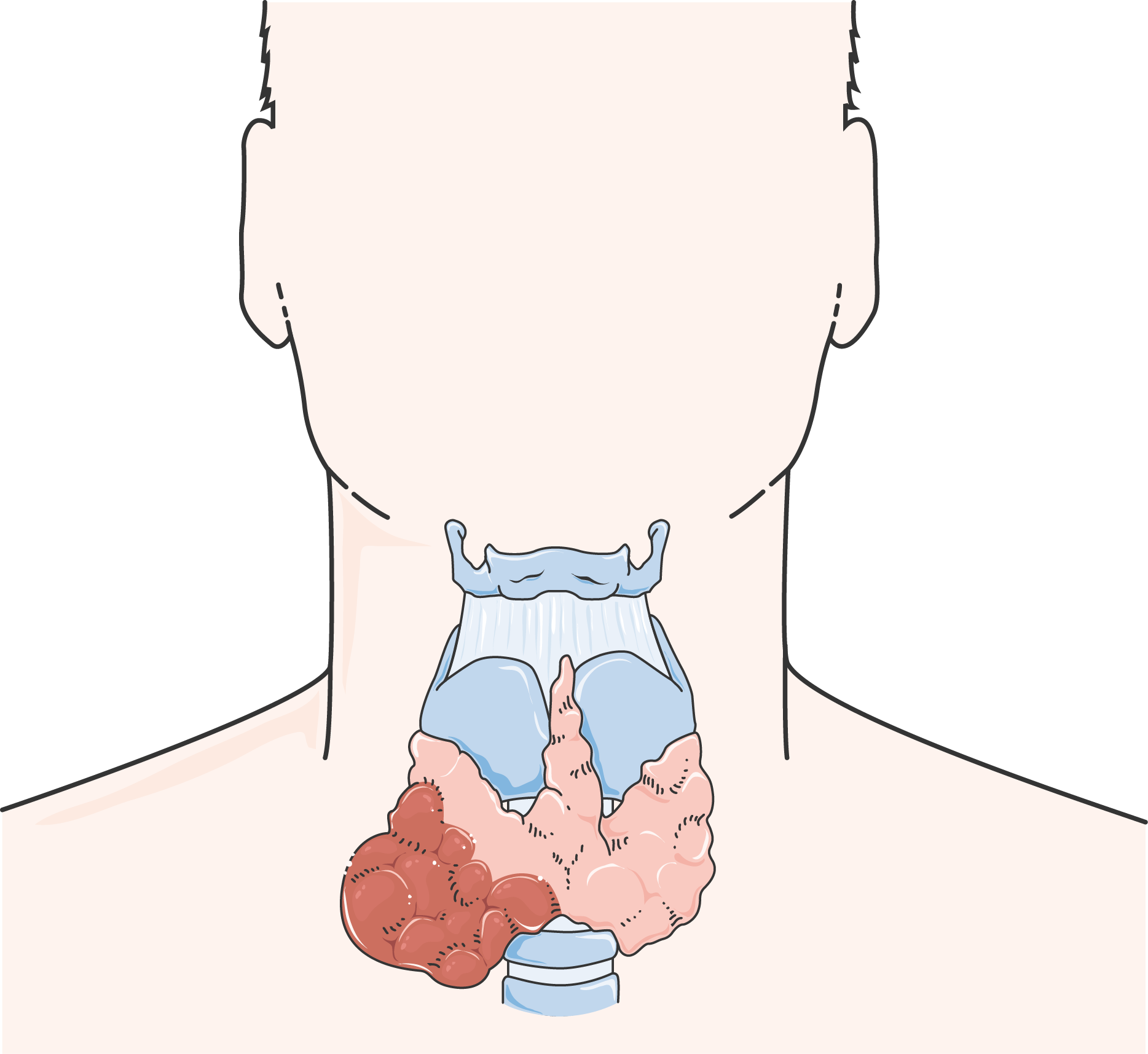 Cancer de la thyroïde