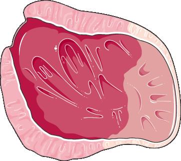 ventricule